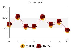trusted 70mg fosamax