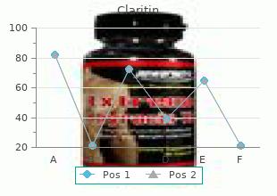10 mg claritin sale