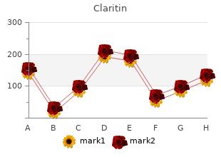 order on line claritin