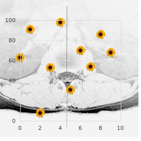 Microcephaly immunodeficiency lymphoreticuloma