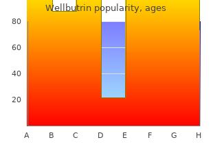 generic wellbutrin 300mg line