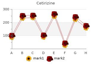 discount cetirizine 10 mg without a prescription